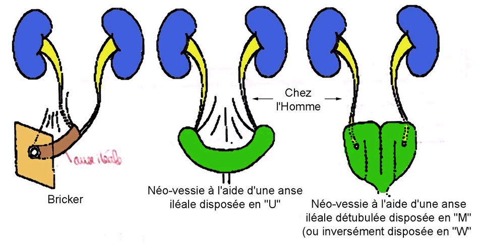 Dérivations cystectomie