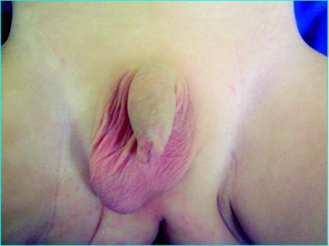 enfant_testicule