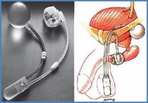 Figure 1. Sphincter artificiel